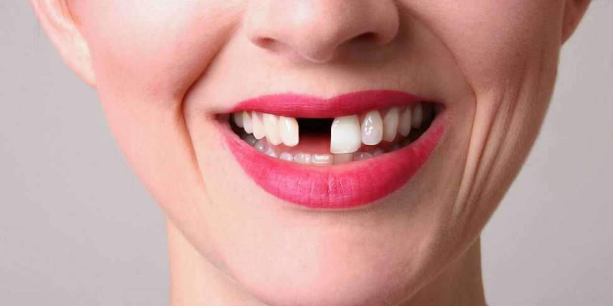 Which Country has the Best Teeth Health?
